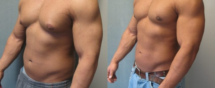 An example of gynecomastia in men due to excessive estrogen levels